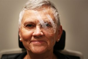 A protective patch will be placed over your eye following cataract surgery. (Image courtesy of Vance Thompson Vision)