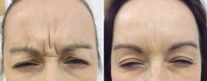 womans forehead with wrinkles before and with out wrinkles after Botox
