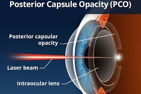 diagram of the eye illustrating YAG laser capsulotomy