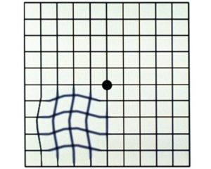 grid box with wavy lines simulating vision loss from AMD