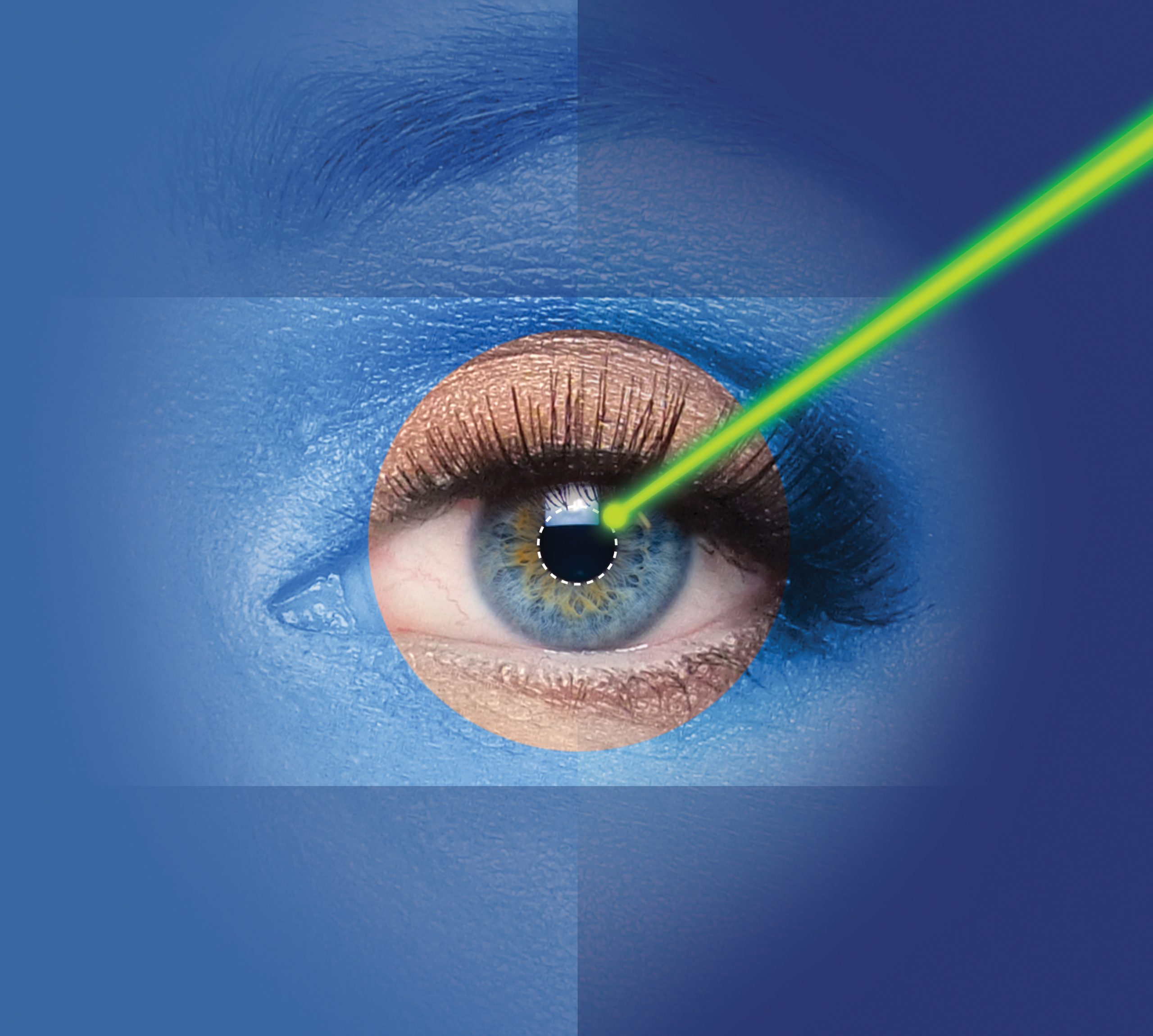 female eye with laser